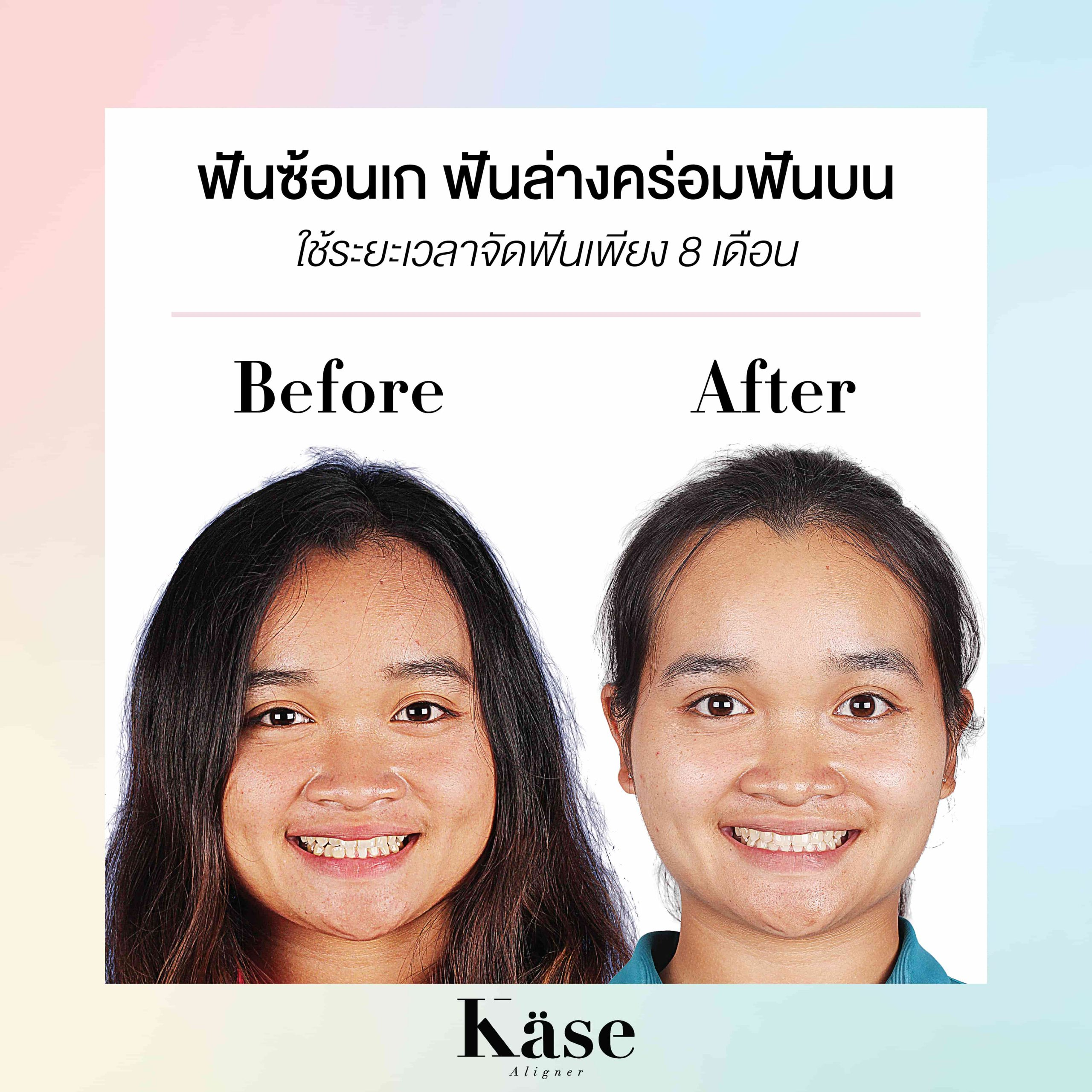 Before After Cases-01 (1)