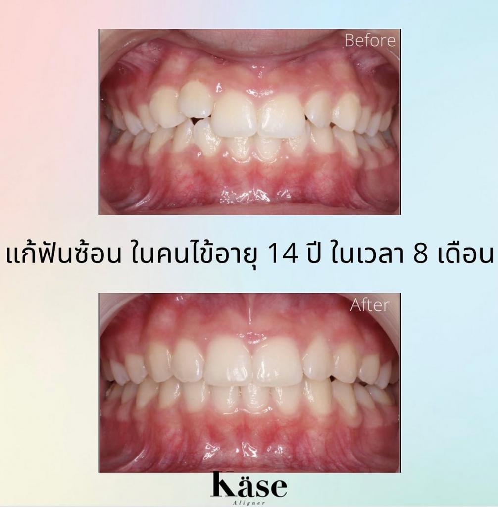 ฟันซ้อน