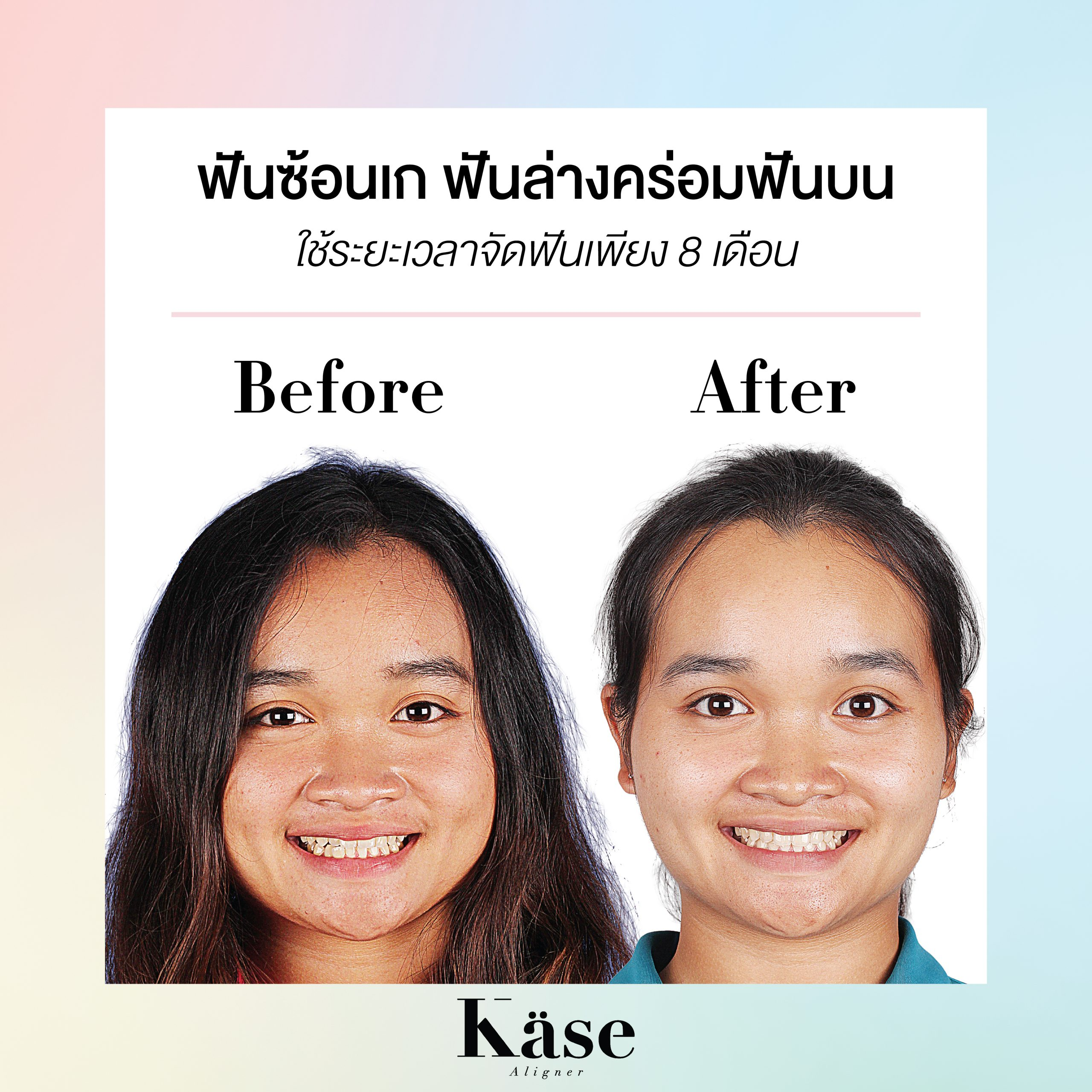 Before After Cases-01