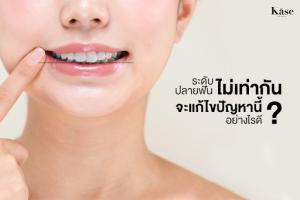ระดับปลายฟันไม่เท่ากัน